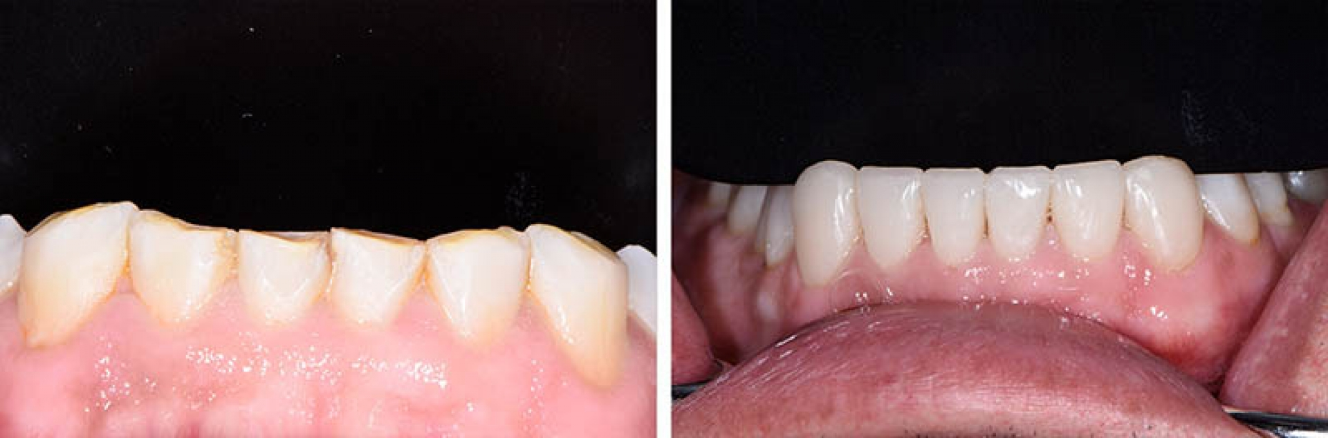 our work-DIRECT RESTORATIONS / ABRASIO